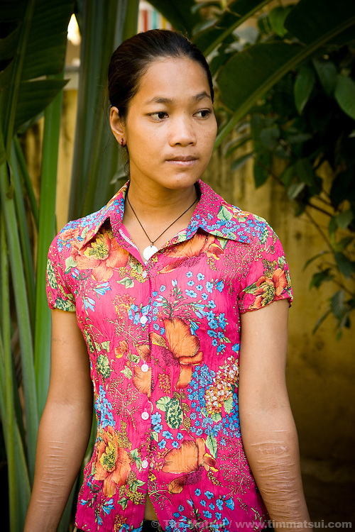 HIV positive sex worker Srey Kah reveals the cuts she made on her arms over the years as she struggled with her victimization. Raped at 16 in her home town, she was later sold by a friend and held captive as a sex worker, then arrived in Phnom Penh and turned to prostitution to survive; she has lived through beatings, gang rapes, drugs, and self mutilation. Her story is a common one; she continues as a prostitute so she can support her mother and put her younger sister through public school.