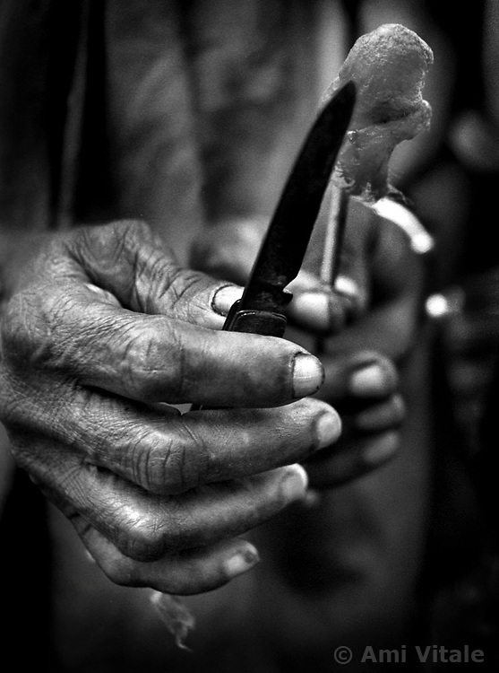 Though the knife was dull to perform a circumcision on Awa, alcohol was used to prevent any infections.