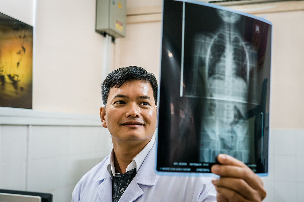 Dr. Nguyen Anh Tuan looks at an x-ray in the imaging room at Nhi Dong (Children's Hospital) 1 in Ho Chi Minh City, Vietnam.