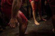 I Battenti continuano a colpirsi finquando le gambe sono coperte di sangue