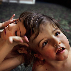 Four-year-old craniopagus twins Tatiana and Krista Hogan are seen in their home in Vernon, British Columbia, Canada, Feb. 27, 2011. The twins, born Oct. 25, 2006 to parents Felicia Simms and Brendan Hogan, are connected at the head and share a brain. Neurologists say the twins are the only such set that have a common neurological connection.