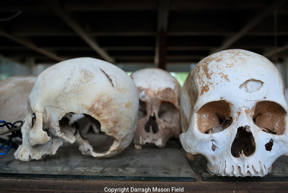 Skulls of young adults, victims of the Khmer Rouge.  The skull on the right has a massive trauma to the frontal lobe.  The skull on the left has blow left from a blunt blade, most likely an axe