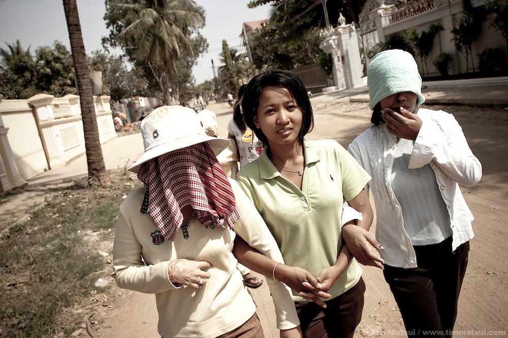 Survivors of acid attack outside the Cambodian Acid Survivor Center where they work in Phnom Penh, Cambodia. Acid attack is a prevalent, and not illegal, act often committed in moments of marital jealousy or business competition. Acid is readily available and creates horrific and disabling burns if it doesn't kill the victim.