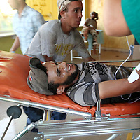 A wounded anti-Gaddafi fighter grimaces as he is brought into a petrol station that has been converted into a field hospital on the western outskirts of Sirte, Libya. September 2011.