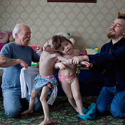 Family members including father Brendan Hogan, right, dress four-year-old craniopagus twins Tatiana and Krista Hogan, Vernon, British Columbia, Canada, Feb. 27, 2011. The twins were born on Oct. 25, 2006 and live in one house with their extended family. Neurologists say the twins are the only such set  that have a common neurological connection.