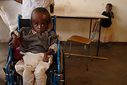 Howard Hospital, Zimbabwe. December 12, 2008. The boy aged about seven did not have a shunt put in at birth. It surprises many he is still alive. This day he was at at cerebral palsy workshop.