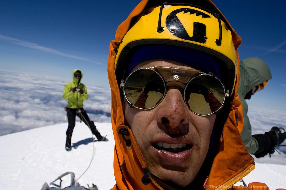 Self portrait, on Liberty Cap, Mt. Rainier, after climbing Ptarmigan Ridge and receiving a rock to the face.