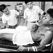 """Nil Sarak is shown by Cambodian doctors where his shatter leg will be amputated Wednesday, March 17, 1999, at the modern trauma facility """"Emergency"""" in Battambang, Cambodia.  Sarak was injured by a landmine while attempting to clear land he and his family recently settled in Bavil provience, 100 kilometers, west of Battambang."""
