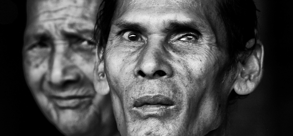 Two older Cambodia men, one of them blind in one eye, attend a religious event near Pailin, Cambodia on the border with Thailand.