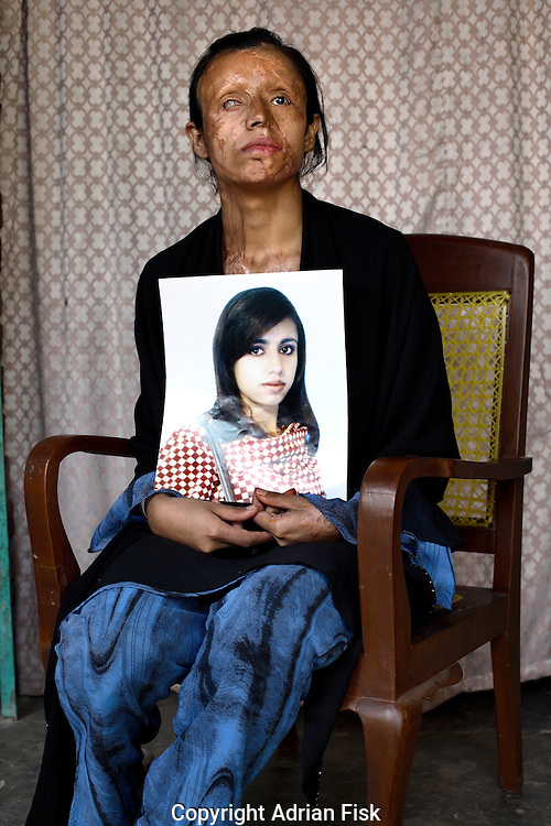 21 yr old Saira Liaqat poses for a portrait holding a photograph of her taken in 2003 just before before her then soon to be husband threw acid over her. Her punishment was for refusing to leave her parents home and go with him to his house..Saira's face has been partially reconstructed by doctors funded by a Lahore based charity called Smile Again. Each year across pakistan thousands of women have acid thrown over them by men.