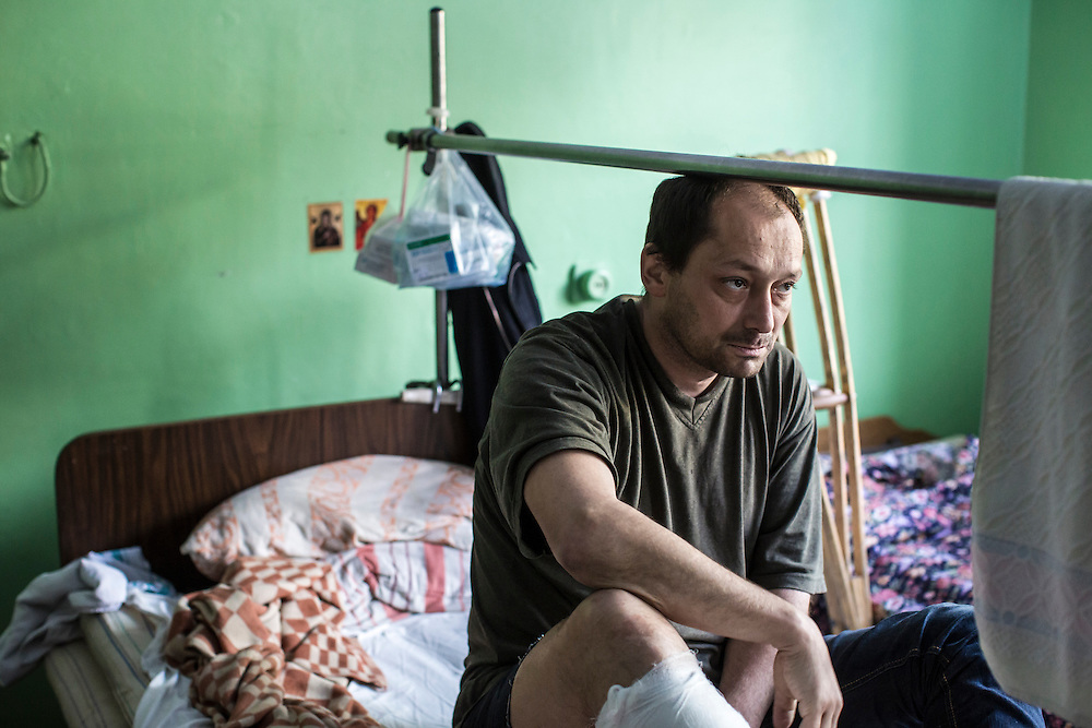 MARIUPOL, UKRAINE - MAY 11: Igor Toskoporan, who was shot in the leg during violent clashes on May 9, in his hospital bed on May 11, 2014 in Mariupol, Ukraine. A referendum on greater autonomy  is being held after pro-Russian activists took over at least ten cities in the eastern part of the country. (Photo by Brendan Hoffman/Getty Images) *** Local Caption ***