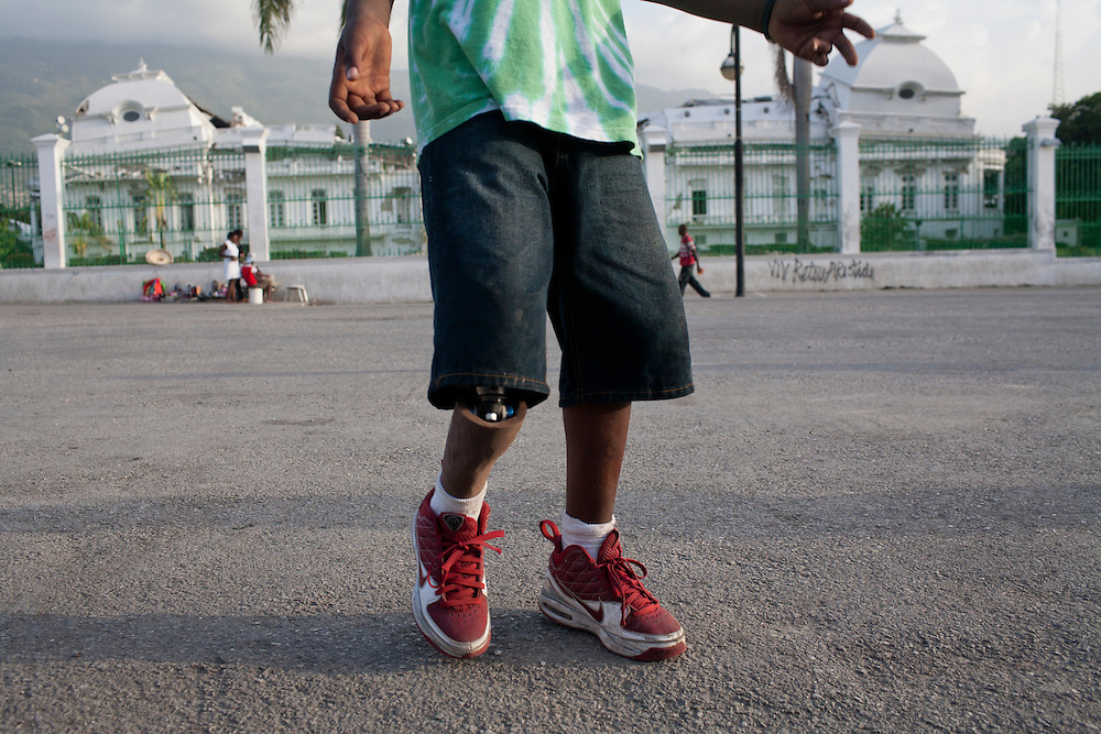 A boy who lost his leg in the earthquake plays soccer with a prosthetic leg in front of the destroyed National Palace on July 9, 2010 in Port-au-Prince, Haiti.