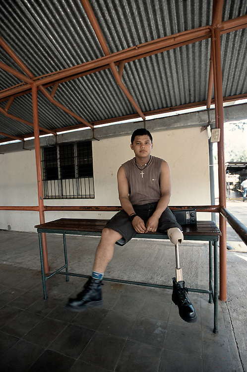 Wilman Vanega, who lost a leg from injuries sustained when the horse he was riding stepped on a landmine, in Managua, Nicaragua.