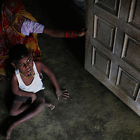 A boy suffering from mental illness, a result of water comntaminated with Chromium in a village outside Kanpur near the leather tanneries.