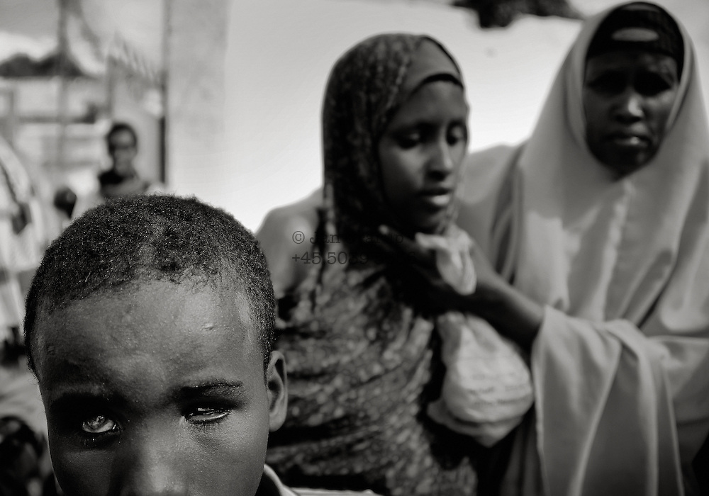 A blinded boy and his severely traumatized sister at a local feeding center in the city - many disabled and traumatized IDP&acute;s turn up every day in order get a minimum of aid and food due to the lack of help for disabled - Due to the lack of security only a few organisation are able to help the many refugees.<br /> Mogadishu;SomaliaThe Horn of Africa is facing a severe crisis due to the convergent effects of the worst droughts in decades, and the persistent effects of armed conflict in Somalia, which has combined to trigger one of the sharpest refugee outflows in a decade to Kenya and Ethiopia. Over ten million people are at high risk including 2.85 million persons in Somalia, 3.2 million in Ethiopia and 3.5 million in Kenya.&ndash;&ndash; Despite access and security limitations, UNICEF is working with local partners in Somalia to bring much-needed relief to over 200,000 people newly displaced by the recent upsurge in conflict in the capital, Mogadishu. - For hundreds of thousands of displaced Somali children, daily life is a mixture of fear and insecurity. Communities break apart, as one by one families leave their villages to flee ongoing conflict. If they survive the journey to Mogadishu, life is not much easier, as they are faced with the daily challenge of finding food and shelter.<br /> For children, this experience can be traumatizing. Having fled their homes in search of safety, they find themselves in overcrowded camps, away from all they know.<br /> While most children arrive in the displaced camps with their families, some are tragically separated from their parents and are either left to fend for themselves or forced to rely on already overburdened community members. Each Child Friendly Space has facilitators from UNICEF&rsquo;s NGO partners who work with the children. Several of the partners also have social workers to help identify and refer children in need of care and protection to the appropriate services. Somalia.