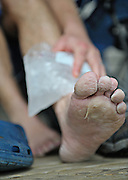 A runner ices his ankle at the Skyline Ranch resort in Front Royal, VA, after completing the Massanutten Mountain Trails 100 Mile run May 17, 2008..The Ultra Marathon is considered one of the toughest on the east coast. The  Massanutten Mountain Trails 100 Mile run (MMT 100) May 17, 2008.<br /> The  race is considered one of the toughest Ultra Marathons on the east coast.
