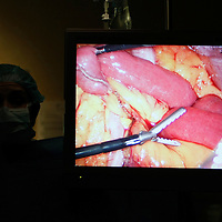 Bariatric surgeon Dr. Michael Snyder instrument is seen on a television screen as he performs a laparoscopic gastric bypass on Carolyn Dawson at Rose Medical Center in Denver August 30, 2010.  Snyder does four types of bariatric procedures completing 451 just last year. REUTERS/Rick Wilking (UNITED STATES)