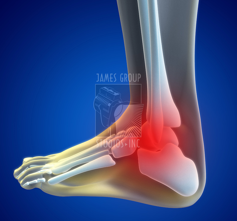 An illustration of a foot xray with a red spot showing the injured ankle.