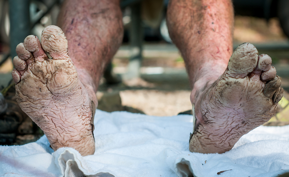 Wouter Hamelinck's feet forced him to quit at the Barkley Marathons.