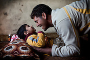 Mohammed Thiab, a young 25-year-old father, is playing with Jasim, 5, one of his two children suffering from severe neurological disorders, on the floor of their home in Fallujah, Iraq. The children have a healthy 8-year-old sister, Sauusan, born before the 2004 US-led battles for the city, who regularly helps the parents in assisting her disabled siblings. The parents and their relatives have no history of birth defects.