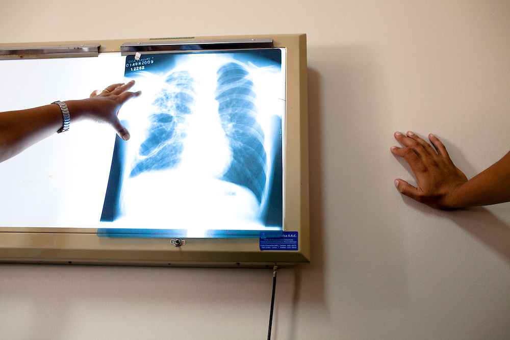 A doctor shows an x-ray of a tuberculosis patient's chest and lungs on Monday, Apr. 6, 2009 in Ventanilla, Peru.