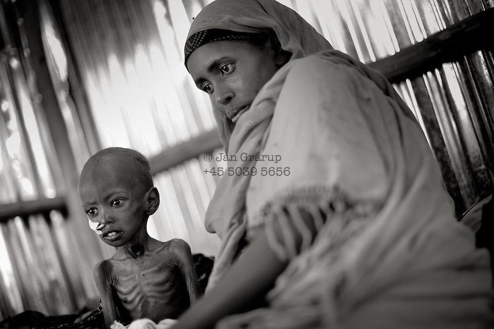 Dollo Ado, Ethiopia.October2011.<br /> In the hospital in Kobe refugee camp , two tear old Karim Hussein sits on the bed severely malnutritioned while his mother Habiba Ali watches over her small son. He was admitted two days prior, by aid workers in the camp. His general health is so bad that it is very unlikely he would survive. Everyday children are admitted in the same state as Karim, but the mortality numbers have done dramatically down over the last few month due to the big effort of organisation&acute;s working in the area. But daily more refugees arrive and the children are the ones suffering the most from the famine.<br /> &rdquo; The drought in the horn of Africa is affecting more than 4.5 million people in Ethiopia. In addition, more than 140.000 refugees from Somalia have settled in camps in the border region between Somalia and Ethiopia. In the area around the border city Dollo Ado, four large refugee camps are already over crowded. A fifth camp is under construction due to the big influx still taking place. Many of the refugees are children, arriving severely malnutritioned. The mortality rate among small children has been brought down, but still children are dying on a daily basis...<br /> The four camps &ndash;Hilaweyn,Kobe, Malkadida and Bokomayo are now hosting more than 120.000 refugees and more are coming daily....