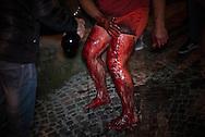 Le ferite vengono lavate con il vino nel quale sono state messe vari erbe e aromi per disinfettare