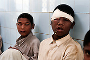 Young mentally ill boy with a facial disfigurement tries  to eat food at the Edhi Foundation Home for Men and Boys on the outskirts of Karachi. The facility currently holds some 1132 men and 300 boys with a staff of 40 including one doctor. Te shelter acts as a 'catch all' safety net giving those who are mentally or physically disabled as well as those who have no where else to go a refuge in a the absence of any state help. most at the facility have been abandoned by their families, and have nothing in the way of personal possessions, the clothes they wear are mostly donated. there are no education/voactional training facilities on site for adults and medical support is basic at best...The youngest, a mentally disable boy is 8 years old whilst the oldest, an 84 years old homeless person. According to Dr Kamal the resident doctor, there are about 80-100 admissions in a week to the senior citizens hall while between approximately 16 people die every month, mostly because of old age. ..The mentally disabled patients receive occasional consultant visits and whilst they are administered prescribed medicines to keep them manageable, no measures are taken to improve their condition or help them become independent in their daily routine...The Edhi facility is able to meet merely their survival needs of the men and boys. Some patients are visited by relatives, very few leave the facility unless there is a guarantee of care from a relative. meals are basic consisting of traditional biryani type rice dish and there is little in the way of running water and electricity. At the time of visit water bowsers were being delivered to the the facility to cater for water consumption. patients sleep some 30 to a room some as may as 80 depending on the mental and physical abilities of the patients....In a country of some 160 million people, affordable medicines and diagnostic tests are beyond the reach of most people in Pakistan. The country suffers from shortage of doctors and governme