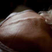 """Morning light illuminates the skin on Mary Triplet's back. She is utterly dependent on Bernard helping her. When asked about it, Bernard says, """" She's put up with me and all the things that I've done wrong. I just know I have to look out for her."""""""