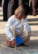 A blind Burmese boy plays in the courtyard of the Mae Sot Hospital during patient screening as part of Operation Smile's World Journey of Smiles in Tak Province, northern Thailand on Wednesday, November 9, 2007. Operation Smile is the Norfolk, VA based medical organization that performs free cleft lip and palate facial corrective surgery to young adults worldwide.