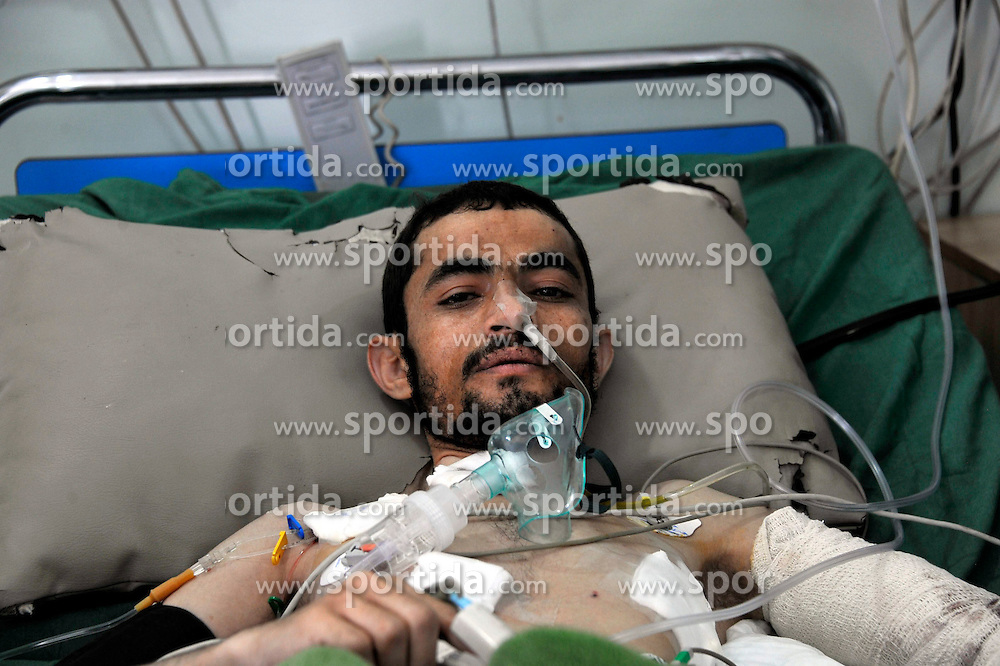 A man receives treatment in a hospital in Sanaa, Yemen, on March 21, 2015. The Islamic State (IS) carried out a series of suicide bombing attacks in Sanaa and the northern Saada province that have killed at least 154 people and wounded 350 others. EXPA Pictures &copy; 2015, PhotoCredit: EXPA/ Photoshot/ Hani Ali<br /> <br /> *****ATTENTION - for AUT, SLO, CRO, SRB, BIH, MAZ only*****