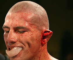 February 18, 2005; Atlantic City, NJ; USA; Sebastian Lujan is stopped in the 10th round of his fight against Antonio Margarito, when he ear is cut by a punch.