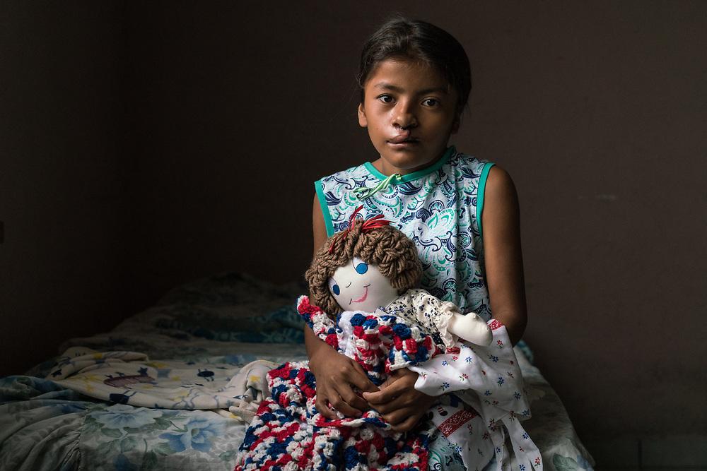 Maria Francis Aleman Guardado, 11, two days after her surgery to repair her cleft lip at Occidente Hospital in Santa Rosa de Copan, Honduras Feb. 22, 2017.