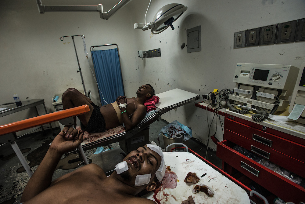 PUERTO LA CRUZ, VENEZUELA - APRIL 16, 2016:  Two ER patients, one with head trauma from a car accident, and another who had been stabbed, lie in the emergency operating room of Hospital Universitario Dr. Luís Razetti. They were both bandaged up then turned away by doctors because they don't have the equipment required to do the scans needed for doctors to proceed in treating them.  They told both patients that they would have to figure out a way to  arrange for private ambulances to take them to a private clinics -- a difficult request for them to fill, given their conditions.  Hospital Razetti (as it is called for short) is one of the worst state-run, public hospitals in Venezuela.  Doctors compare it to working in a war zone - they regularly have to turn patients away, because they don't have the majority of medicines  or medical equipment and supplies needed to give them medical attention.  When they do accept patients, they have to work with extremely limited resources, because they don't have the supplies they need for things like X-Rays,  and many exams nd operations.  The hospital's infrastructure is crumbling, and staff don't have all the cleaning supplies required to keep the hospital sanitary. The hospital also suffers from weekly shortages of running water and electricity.  In April, several babies died when a power outage turned off the incubators, and the hospital's generator failed to work because of lack of maintenance.  The same month, authorities found over 100 pieces of medical equipment, stolen from the hospital in the home of the assistant to the hospital's director.  Despite having the largest oil reserves in the world, falling oil prices and wide-spread government corruption have pushed Venezuela into an economic crisis, with the highest inflation in the world and chronic shortages of food and medical supplies. PHOTO: Meridith Kohut