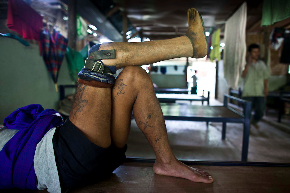 A former soldier with the Karen National Liberation Army, who lost a leg in a landmine explosion is seen resting  in the Men's Handicapped Ward at Mae Hla, Thailand refugee camp Wednesday, Aug. 17, 2011.  Sixteen landmine victims call the ward home.  All but two have been blinded by a landmine explosion.  The KNLA has been fighting a civil war against the government of Myanmar for since 1949.   (Photo by David Longstreath)