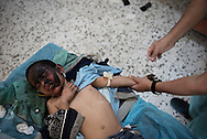 Libya, Sirte: a Libyan doctor inserts a cannula on a boy to rehydrate him.<br /> The boy reported burns due to explosions and has been taken at a field hospital right after then fighters of the Libyan forces affiliated to the Tripoli government took him from the area under ISIS control in Sirte. Alessio Romenzi