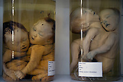 Embryos displayed for research purposes in a room at the Peace Village within the Tu Du (Freedom) Obstetrics and Gynaecology Hospital in Ho Chi Minh City, Vietnam.