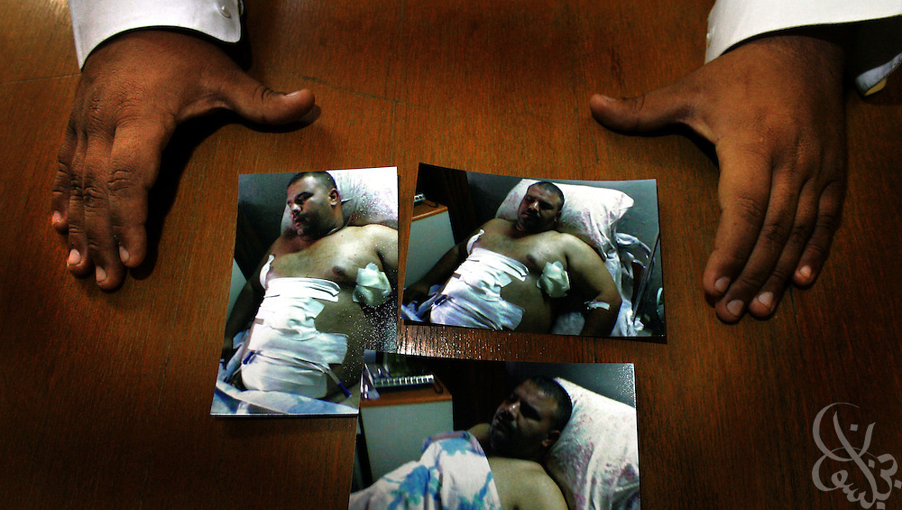 Iraqi Shiites store owner Naama Mahdi Hameed displays pictures of himself taken after sustaining wounds several months ago in a brazen daylight attack by sectarian gunman in Baghdad, Iraq. As a Shiite shop owner in the predominately Sunni neighborhood of Jamiyah, Hameed was repeatedly warned to leave and then attacked by gunmen who shot him 7 times. Fearful of further attacks, Hameed asked that his face be obscured partially in the portrait and has made plans to leave Iraq for neighboring Jordan in order to escape rising sectarian violence.