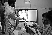 Patients has a chest drain inserted into their lung to drain fluid and obtain a biopsy for suspected pulmonary tuberculosis.....Patients admitted for treatment range from teenagers to the elderly. The hosiptal has a policy of non-isolation. Patients can lead normal lives and do not be isolated. According to chest specialist Dr Shahzada Athat, patients already bear the burden of social stigma that people create around a patient suffering with TB. They advocate treatment, which can be provided at home...The hospital follows the DOTS (Directly Observed Treatment Courses) policy directive issued from World Health Organisation (WHO) where a person of social standing or responsibility (teacher or health worker) observes the administration of medicines by the patient...Following an intensive phase of initial therapy and further eight months of treatment, the patient becomes non-infectious. Patient care at the hospital is free courtesy of government funding..