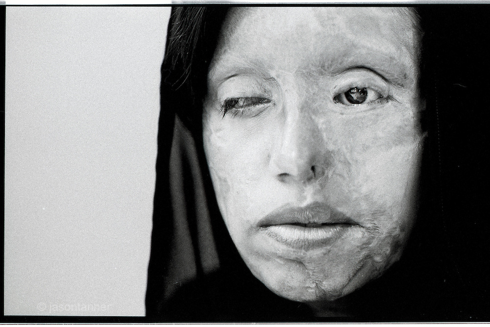 Lahore: Saira Liaquad, a 22 year old victim of an acid attack from Lahore. ..Saira was engaged when she was 16 years old, her parents could not afford to pay the dowry required under Pakistani tradition, so her future husband requested that she leave the family home, marry and live with her husband, The family objected, Saira made the choice to stay with her family and the husband responded by throwing acid in her face resulting in facial disfigurement...After 6 years of court cases the husband still denies any wrong doing and the case continues through the laborious Pakistani judicial system...Saira has so far received 17 operations to correct the disfigurement but the current instability in the country means the doctors/plastic surgeons from Italy are reluctant to travel due to security concerns..