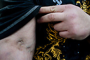 A former heroin user displays scars left by his addiction in Columbus, Ohio on Thursday, April 9, 2009. ..*Note: This subject 's name is Jimmy Potts - he was an informant in a major narcotics case and also did not want his identity revealed.