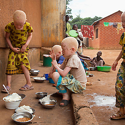 Children at the Kabanga Protectorate Center and School in Tanzania share a meal outside their dormatories. Worldwide, albinism affects roughly one in 20,000 people. But in Tanzania, where rural gene pools are more isolated, it's estimated as many as one in 2,000 have the disorder.