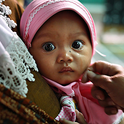 Tears are wiped from the face of nine-month-old Rima Apip after her circumcision in Bandung, Indonesia on April 23, 2006. The families of 248 girls were given money to have their children circumcised in a mass circumcision celebration timed to honour the Prophet Mohammed's birthday. While religion was the main reason for circumcisions, it is believed by some locals that a girl who is not circumcised would have unclean genitals after she urinates which could lead to cervical cancer. It is also believed if one prays with unclean genitals their prayer won't be heard. The practitioners used scissors to cut the hood and tip of the clitoris. The World Health Organization has deemed the ritual unnecessary and condemns such practices.