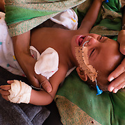 A child being treated for severe acute malnutrition at a Médecins Sans Frontières (MSF) stabilisation centre for children suffering from malnutrition at the Mbera refugee camp in southeastern Mauritania on 1 March 2013.