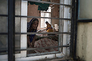 India, Maharashtra. Burn ward at Sangli hospital. Alessio Romenzi