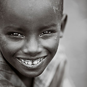 A young boy, suffering from malnutrition in the genocide survivors village of Rugerero Rwanda.
