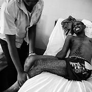 "Tony Boussana, 24, who is partly paralized by polio, is helped by his girlfriend Sabena, 19, as he tries to sit up in his bed at the A. Cisse Hospital in Pointe-Noire, Republic of Congo on Friday December 3, 2010. ""When I got to the hospital I could still move my arms, but now I can't"", he says. ""I feel completely lost."""
