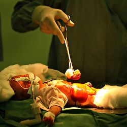 A four-day-old baby is operated on for duodenal atresia, a disease of newborn infants, inside the Children's Hospital at the Pakistan Institute of Medical Sciences, P.I.M.S., in Islamabad, Pakistan on Sept. 18, 2007.