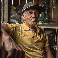 Juana Santos- Sao Raimundo Community on the Rio Madeirinha, a tributary of the Amazon river in Brazil Wednesday June 19, 2015. Doctors and dentists aboard the Igaraçu are on a 20 day visit to various tribal communities up and down parts of the Amazon river and its tributaries. The Igaraçu is the first government subsidized boat for Brazil. Photo Ken Cedeno