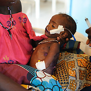 Two year-old Nasseyba Souley is fed Formula 75, a therapeutic milk, through a stomach tube at the Save the Children stabilisation centre in Aguie the Tessaoua region of Niger.